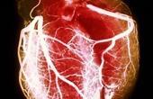 Систолический шум при артериальной гипертензии