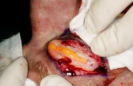 операция по удалению жира с живота цена