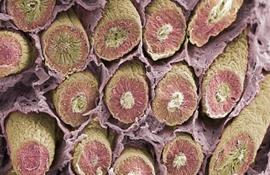 Электронного микроскопа (SEM) срез семенных канальцев, места, где