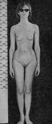 Синдром тестикулярной феминизации сексуальность