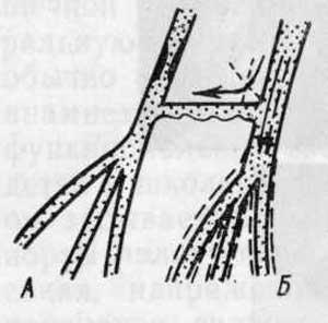 Артериальная гипертензия препараты