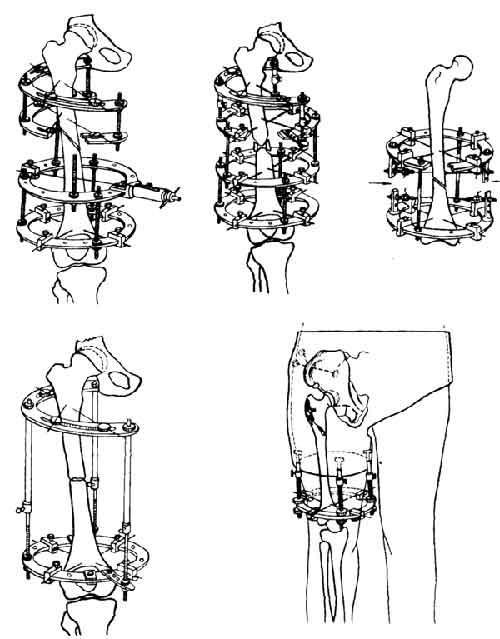 Схемы компоновки аппарата Илизарова при переломах бедра