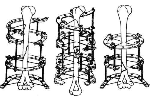 Схемы компоновки аппарата Илизарова при переломах плечевой кости