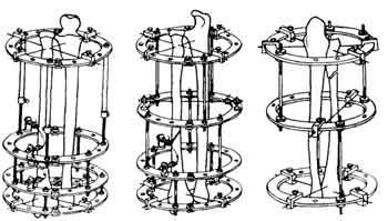 схема остеосинтеза по илизарову