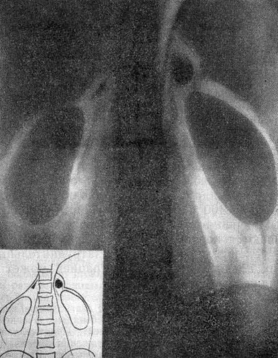 Синдром Конна фото