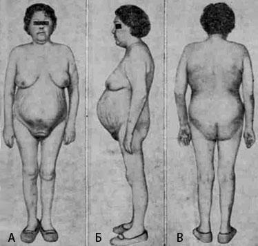 Болеутоляющие при болях в пояснице и ногах