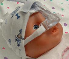NeoPAP™ - система CPAP для новорожденных