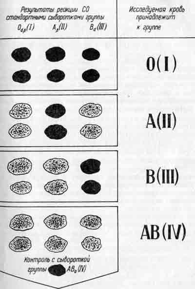 Определение групп крови АВ0 по
