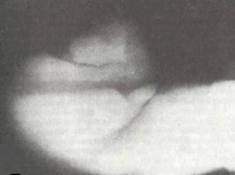 Болях мышцы спины ниже лопаток