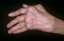 Артрит на руках