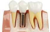 Методики протезирования зубов