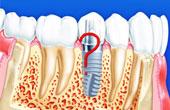 Имплантация зубов в клинике «Дентал Гуру»
