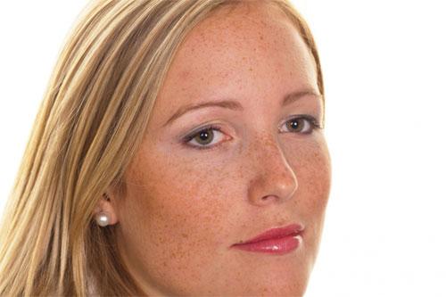 Причины и симптомы появления пигментных пятен