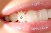 Изменение цвета эмали зубов