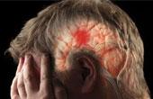 Причины, симптомы, профилактика инсульта