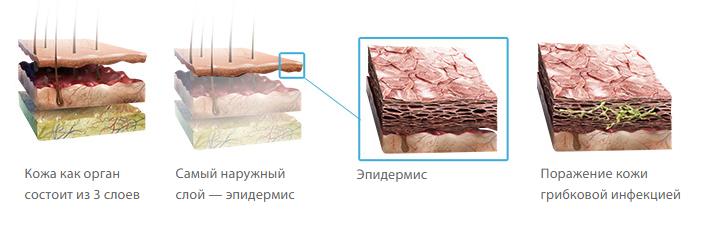 Как лечить грибок кожи