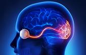 Что такое зрительный неврит?