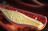 Причины болезни сосудов, их особенности и возможные заболевания