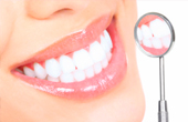 Как происходит отбеливание зубов в стоматологии