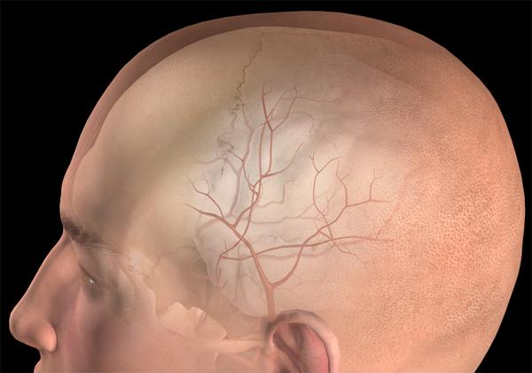 Что такое эпидуральное кровоизлияние?