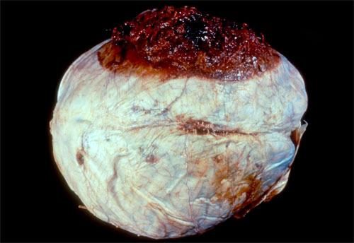 Что вызывает эпидуральное кровоизлияние?