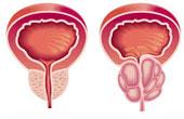 Профилактика простатита и его рецидивов