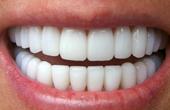 Отбеливание зубов: все За и Против