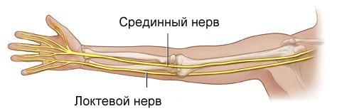 Почему повреждается срединный нерв и как его лечить?