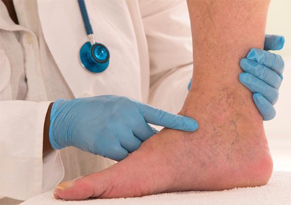 Методы лечения тромбоза