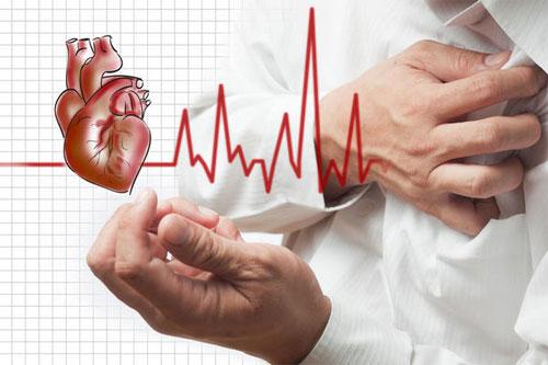 Инфаркт миокарда: признаки и профилактика