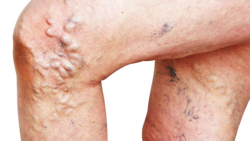 Мифы и правда о варикозе ног