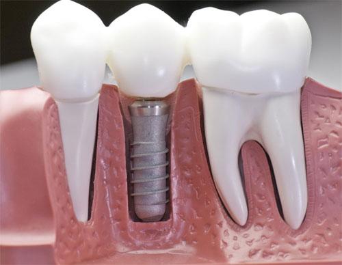 Долговечность и качество имплантации зубов