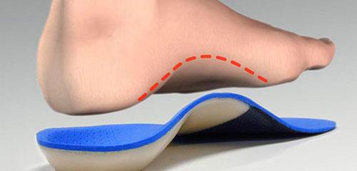 Ортопедические стельки: механизм воздействия и показания к применению