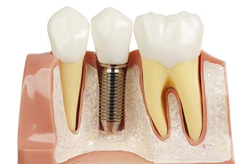 Зубные импланты: виды и характеристики