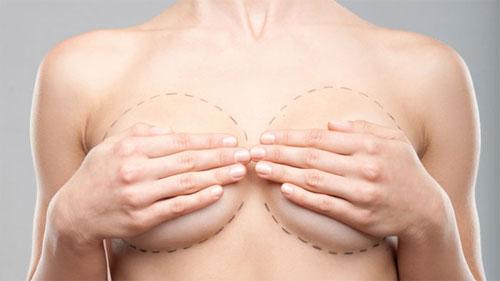 Маммопластика: ответы на главные вопросы