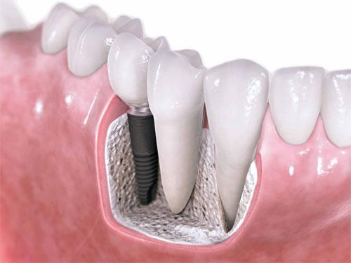 Как вставляют импланты зубов?