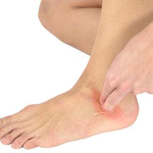 Как определить повреждения в костях стопы