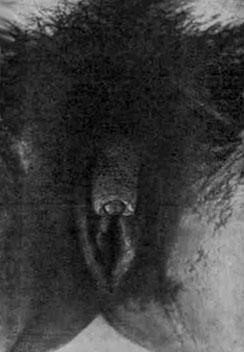 Человек с парой половых органов фото