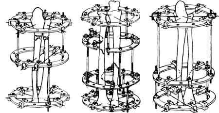 Схемы компоновки аппарата Илизарова при переломах лучевой кости