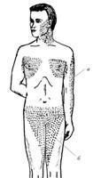 Локализация сыпи в продромальном периоде натуральной оспы: а - плечевой треугольник; б - бедренный треугольник Симона.