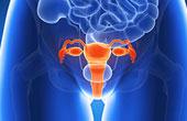 Онкология. Борьба с раком шейки матки