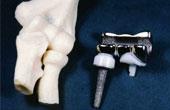 Как протезируют локтевой сустав в Израиле?