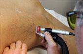 Лечение варикоза: лазер против народных методов
