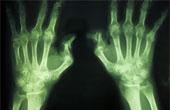 Проверенные народные методы лечения артрита