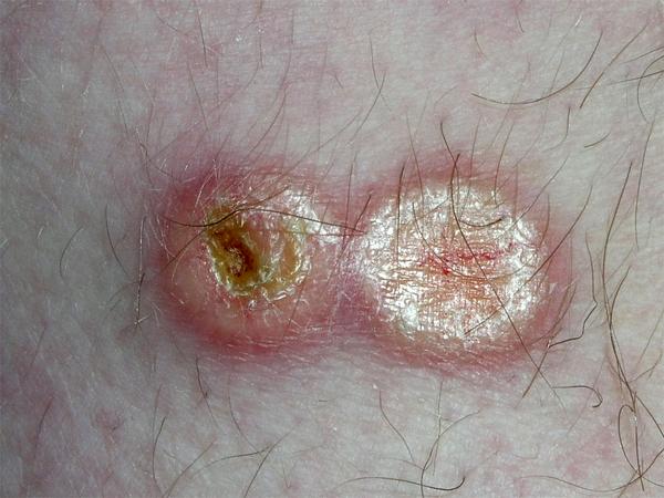 Лечение кольцевидной гранулемы