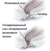 Лечение внутреннего геморроя