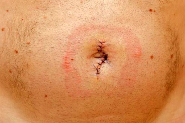 Насколько эффективно хирургическое лечение пупочной грыжи
