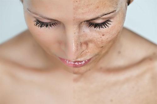 Появление пигментных пятен из-за гормональных нарушений