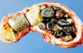 Камни в желчном «узле»