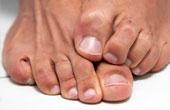 Правила лечения грибка ногтя